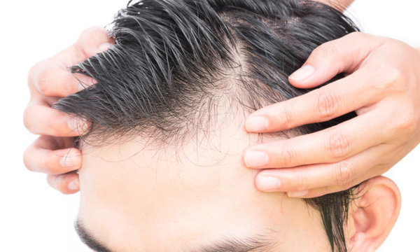 زراعة الشعر
