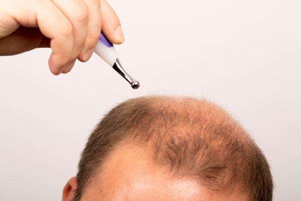 أدوية تساقط الشعر
