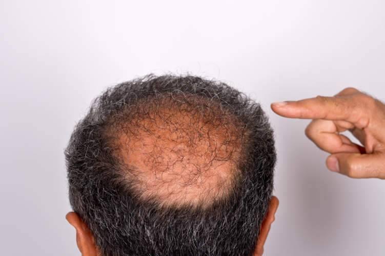 كل ما تريد أن تعرفه عن زراعة الشعر