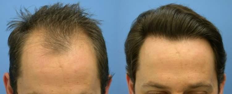 علاج طبيعي لتساقط الشعر