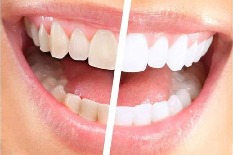طرق طبيعية لا غنى عنها لإزالة جير الأسنان