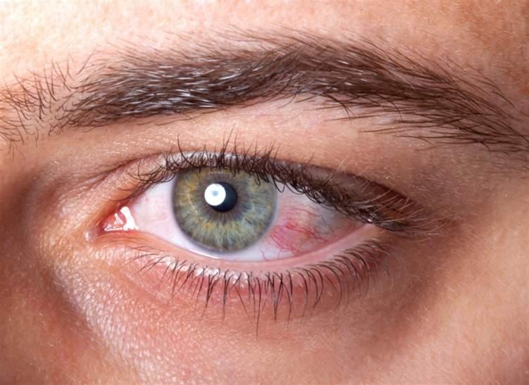 احمرار العين .. هل تستدعي زيارة الطبيب؟