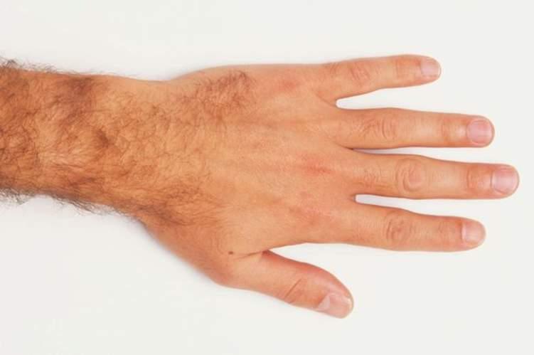 الرجال ذو الأصابع القصيرة أكثر عرضة للوفاة بكورونا
