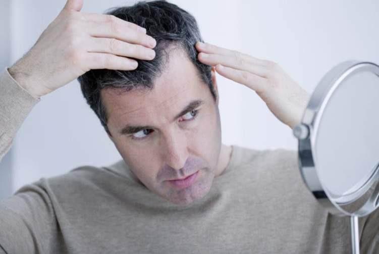 4 مشاكل صحية تسبب ظهور الشيب في سن مبكر