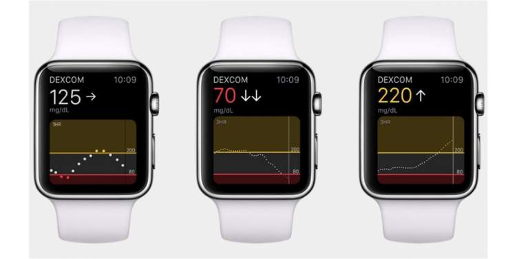 """ساعة """"آبل"""" الجديدة بميزة مراقبة نسبة السكر في الدم"""