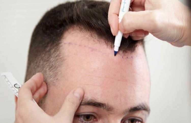 كل ما عليك معرفته قبل وبعد عملية زراعة الشعر
