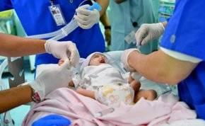 لقطات مباشرة من عملية فصل التوأم الطفيلي اليمني في الرياض