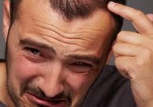 4 أسباب غير متوقعة لتساقط الشعر والاصابة بالصلع