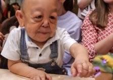 """مرض وراثي يحوّل طفلًا عمره 6 سنوات لـ""""ستيني متقاعد"""""""