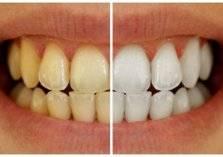 3 وصفات سحرية لتبيض وتنظيف الأسنان من المنزل