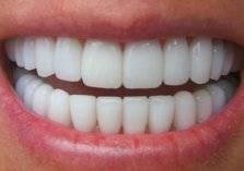 """هل يمكن أن تؤدي عملية """"هوليوود سمايل"""" للأسنان لنتائج غير مُرضية؟ (فيديو)"""
