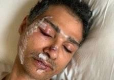 القصة كاملة لحادثة الاعتداء على مواطن سعودي في ماليزيا