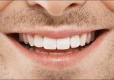 إليكم 5 أطعمة تُسبّب اصفرار الأسنان!