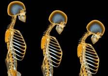 ما هو مرض هشاشة العظام وأعراضه وكيفية الوقاية منه؟