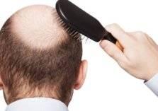 الشوربة والأسماك وأطعمة أخرى لمنع تساقط الشعر بعد الإصابة بكورونا