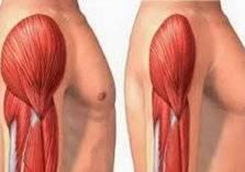 جديد الطب.. تطوير عضلات بشرية تباع بحسب الطلب